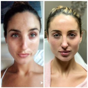A before and after shot of a woman who got dermal filler.